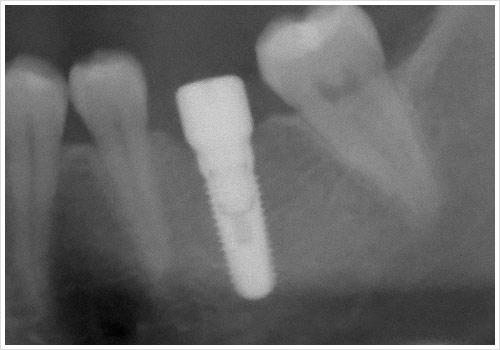 Zahnarztpraxis Jonscher Implantologisch