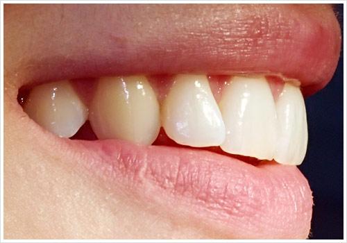 Zahnarztpraxis Jonscher Prophylaxe