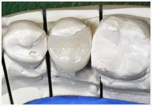 Zahnarztpraxis Jonscher Rekonstruktion